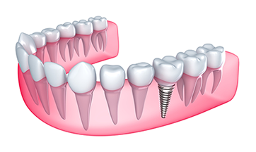 Dental Implants in Mystic, CT